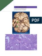 SCHWANNOMA histopatologia (3)