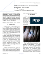 Gastric and Umbilical Metastasis of Cutaneous Malignant Melanoma