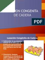 Luxacion Congenita de Cadera