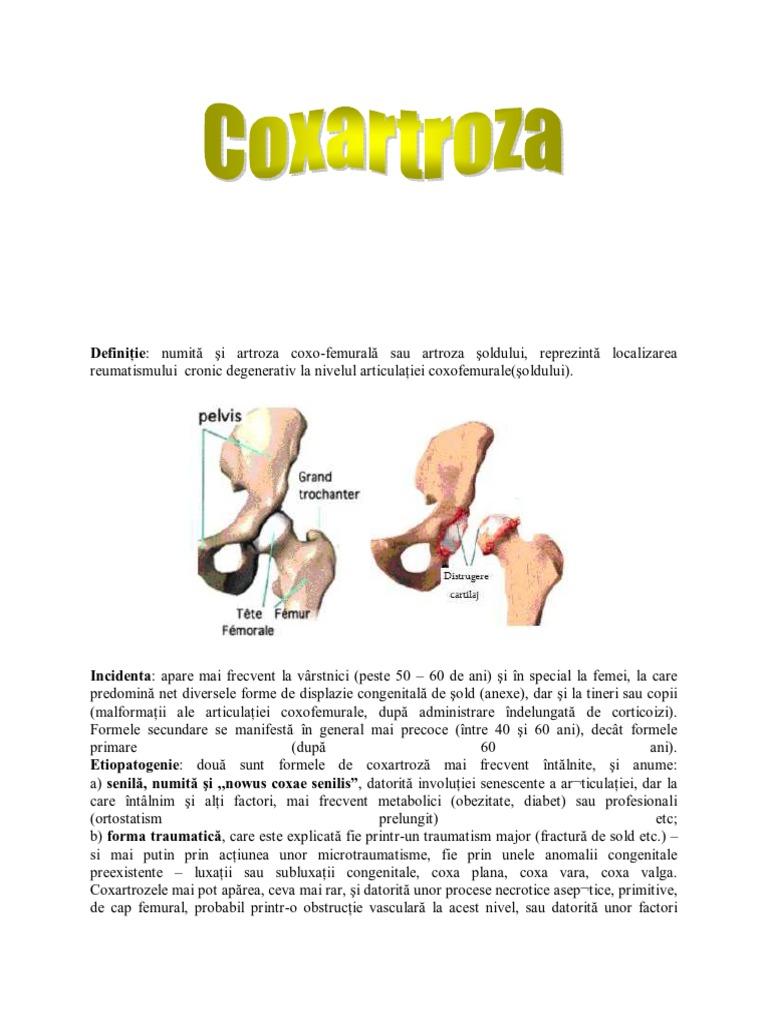 artroza articulației mari