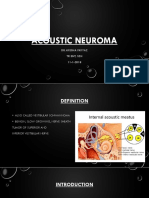 6 Acoustic Neuroma