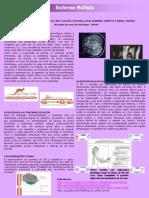 Esclerose Multipla[2]