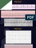 Acute Coronary Syndrome Pelatihan Anastesi GELS PPGD