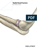 Acutrak2 Radial Head Case Study