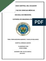Fibroadenoma Mamario y Nodulos Malignos
