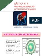 Criptococcus Neoformans Final