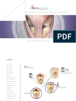 PFC sigma knee