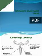 kb-iud-1