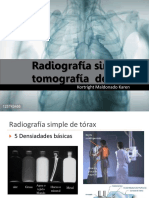 radiografia simple y tomografia de torax
