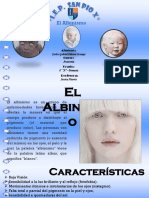 albinismo.pptx
