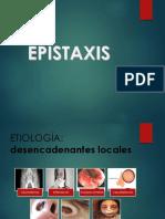 epistaxis presentacion.pptx