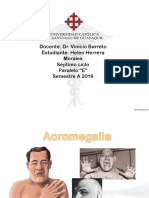 Acromegalia