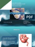 Apendicitis.