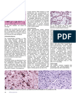 WHO Classification of Tumours of the Central Nervous