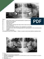 Chapter 02 Panoramic Anatomy