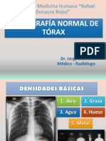 1. Rx. Normal de Torax 10.18