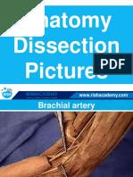 Dissection Anatomy Upper Limb