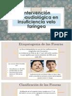 IVF.pptx