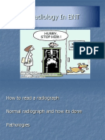Radiology in ENT