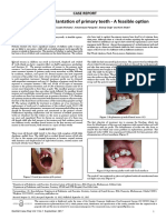 Avulsion and Replantation of Primary Teeth a Feasible Option