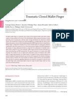Mallet finger review.pdf