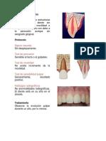 Accidentes Dentales mas comunes