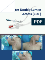 Catheter Double Lumen Access (CDL )