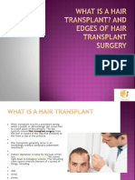 What is a hair transplant? and edges of Hair Transplant Surgery