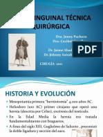 Hernia Inguinal Técnica Quirúrgica