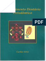 Movimento Dentário Ortodôntico
