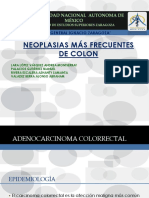 Neoplasias de colon