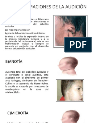 agenesia pabellon canal auricular