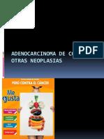 Adenocarcinoma de Colon y Otras Neoplasias