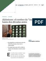 "Alzheimer El Cerebro Da ""Indicios"" Hasta Dos Décadas Antes La Voz"