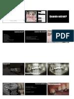 Exodontias simples.pdf