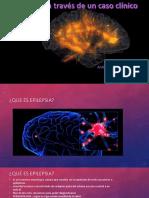 Epilepsia a Traves de Un Caso Clinico
