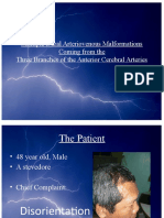 Multiple Dural Arte Rio Venous Malformations Coming From The