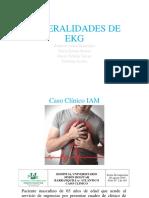 Interpretación Electrocardiografica Del IAM
