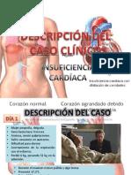 Caso-clínico-N2.-Insuficiencia-cardíaca.pptx