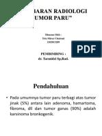 Radiologi Tumor Paru Ppt