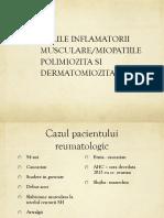 4. Miozita