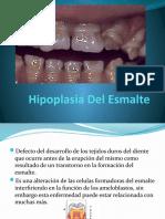 Hipoplasia Del Esmalte 3er Sem