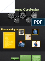 Tumores Cerebrales DPI
