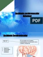 ACV Alzheimer
