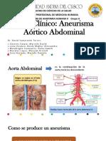 Caso Clínico Aneurisma Aórtico Abdominal