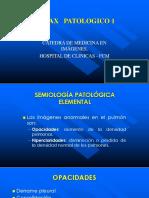 2.2 Tórax Patológico 1.ppt