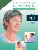 Understanding Dental Implant
