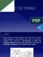 tac torax expo.pptx