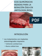 tcnicasquirrgicasavanzadasparalaregeneracinseaen-131125135943-phpapp02