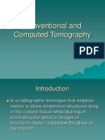 conventional-and-computed-tomography.ppt
